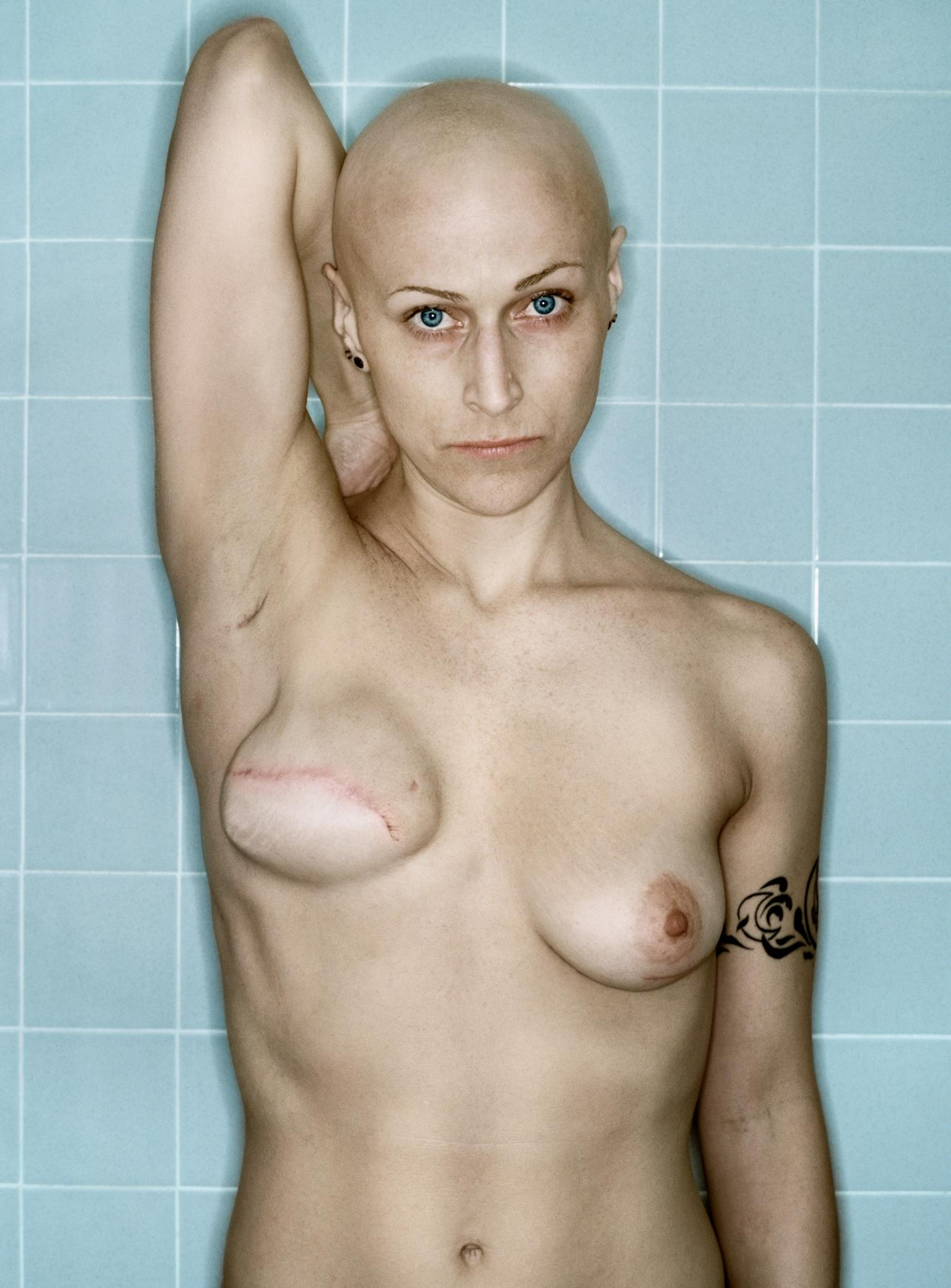 Фото отрезанная грудь 8 фотография
